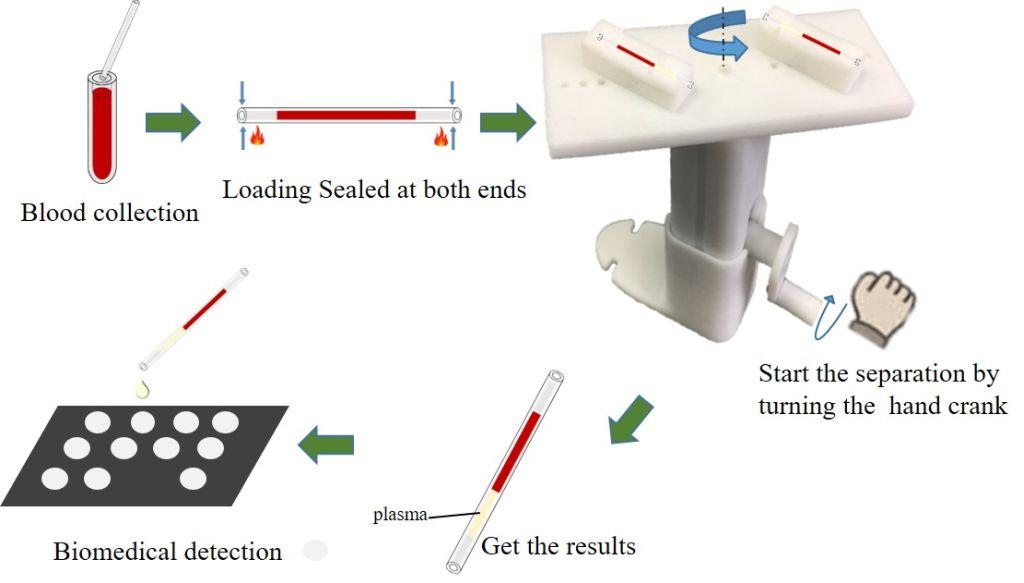 結合手動式離心機與紙張平臺於疾病定點即時診斷