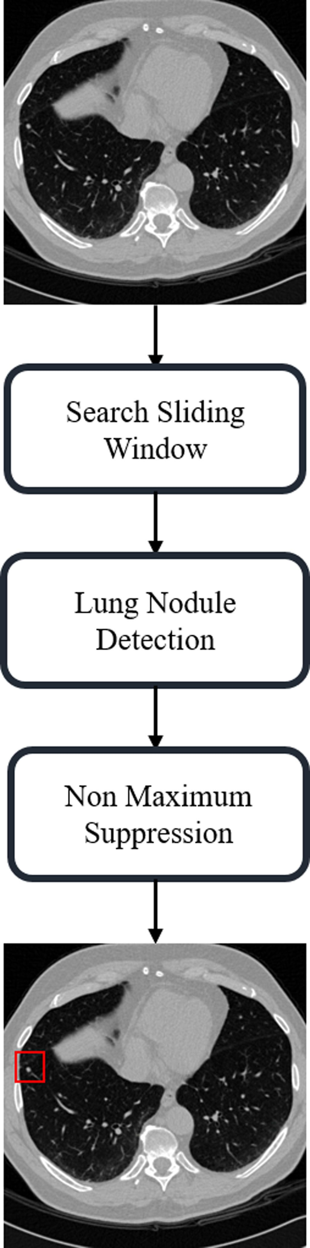 Using 3-D Capsule Network for Nodule Detection in Lung CT Image