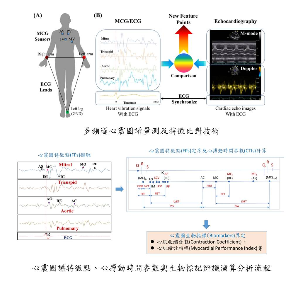 Wearable MCG spectrum assisted mobile detectionearly warning system for cardiovascular diseases