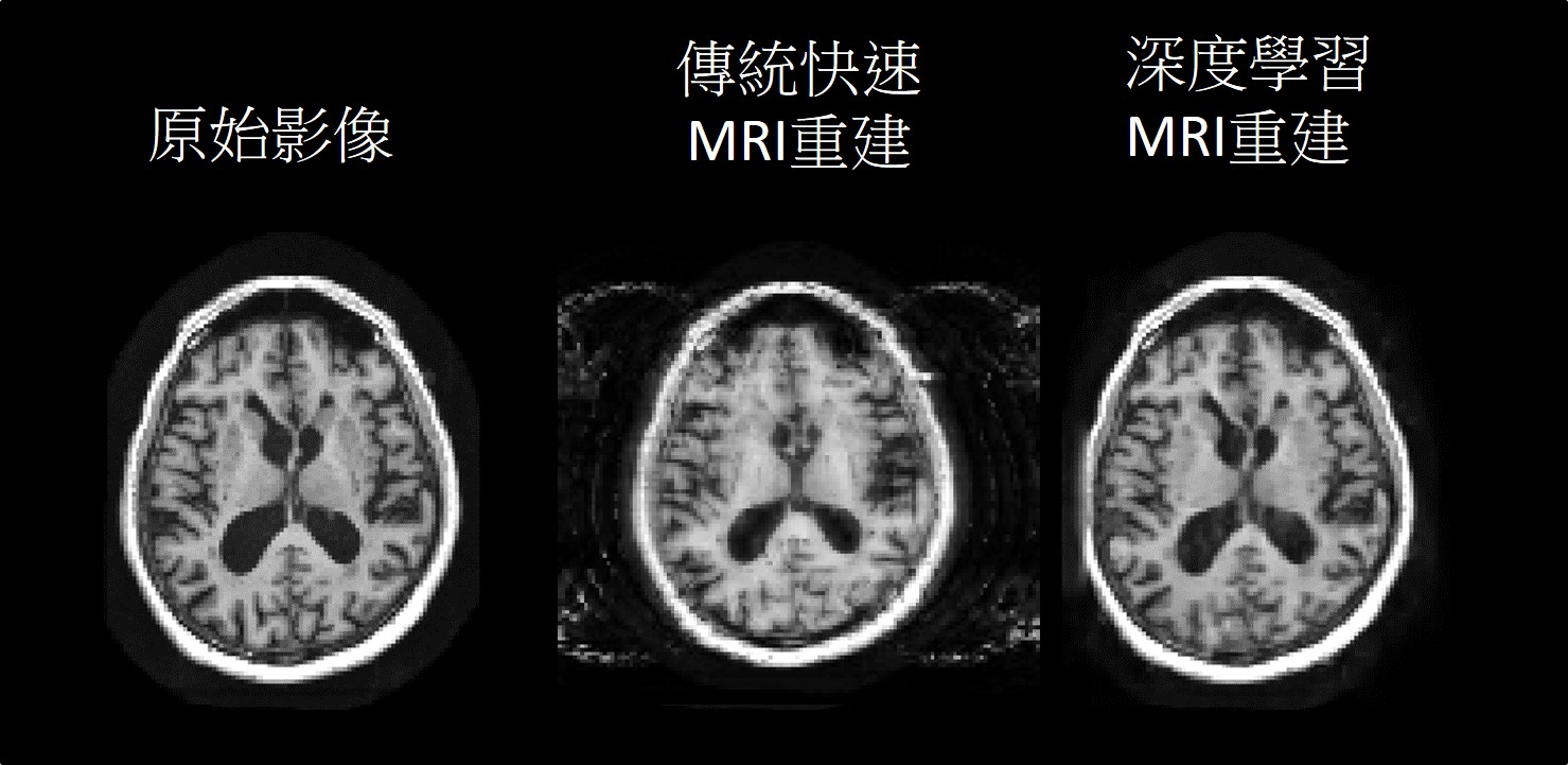 Reconstruction of Accelerated MRI using Deep Learning