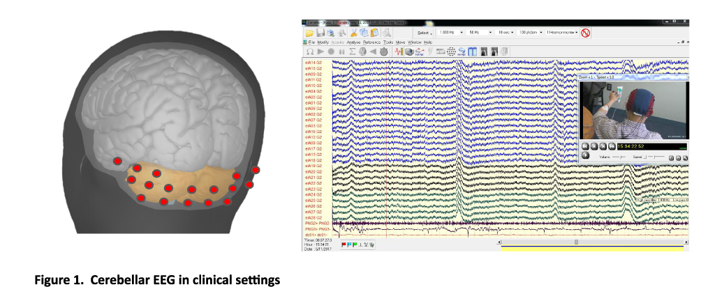 Cerebellar electroencephalography: a new technologythe breakthrough in the pathophysiology of essential tremor