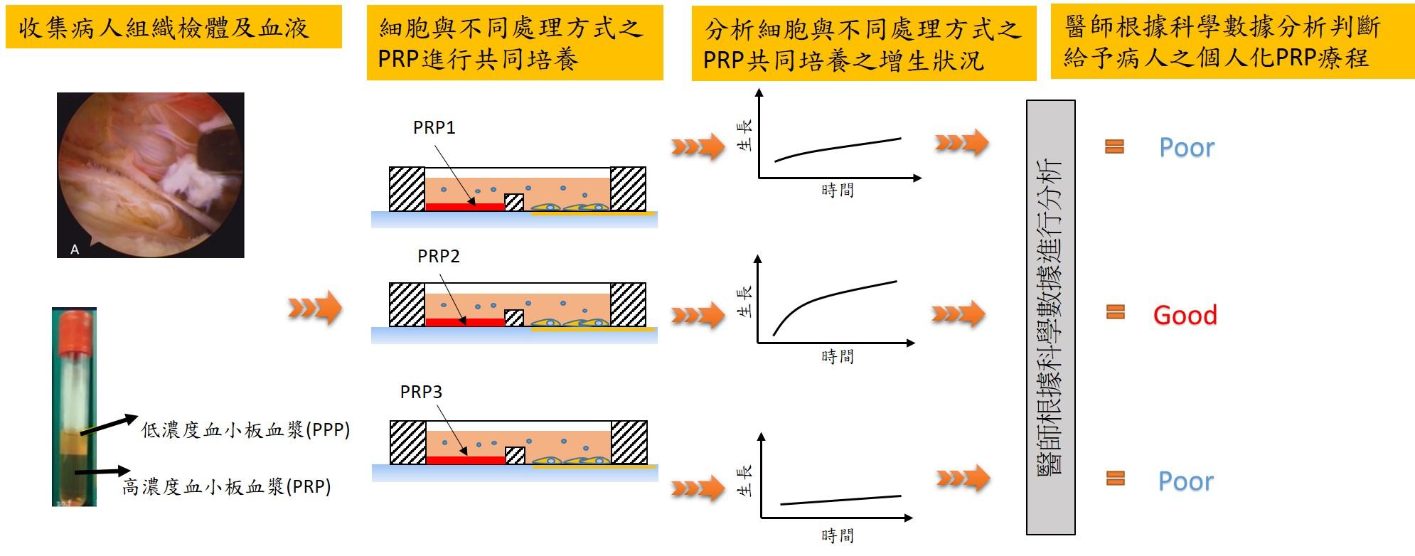 Optimization of Platelet-rich Plasma (PRP) Prolotherapy