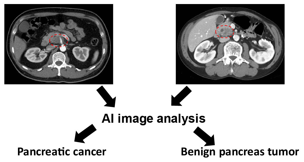 Improving DetectionCharacterization of Pancreatic Masses through Artificial Intelligence-assisted Imaging Processing