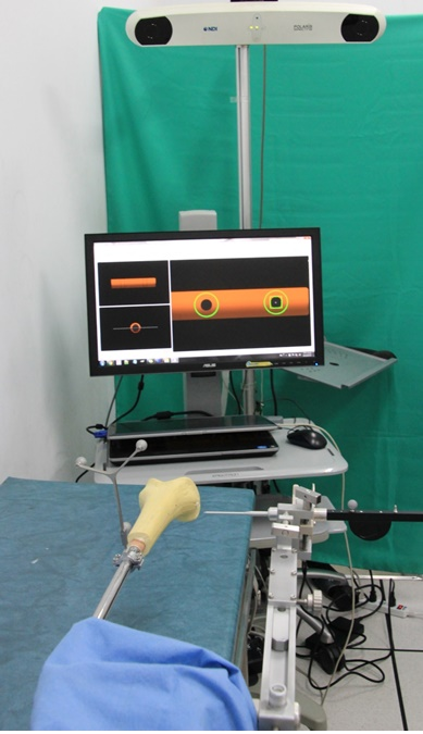 Computer assisted surgical navigation system for femoral fracture reconstruction