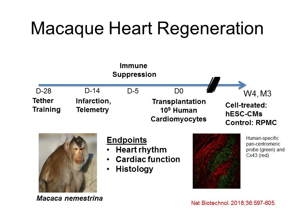 Human pluripotent stem cell therapy for ischemic heart disease