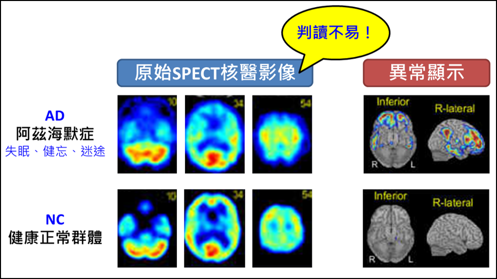 Development of Functional Images AnalysisAssistant Platform for Dementia