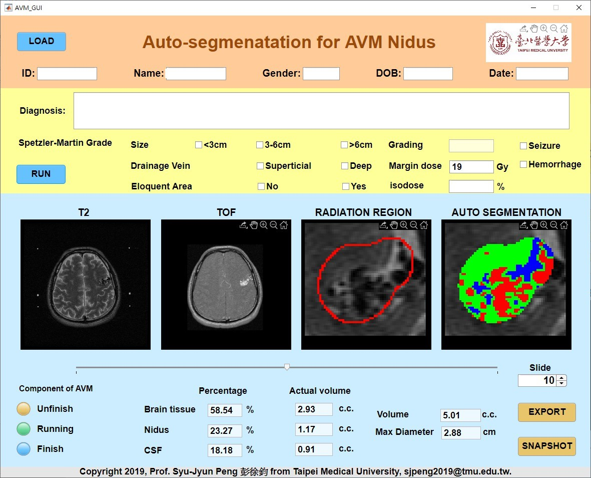 Auto Segmentation App. for Predication of Arteriovenous Malformation