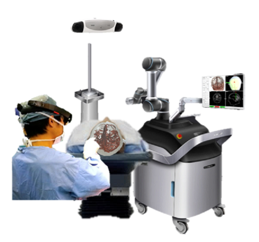 AR Assisted 3D Surgical Navigation System for Brain Surgery