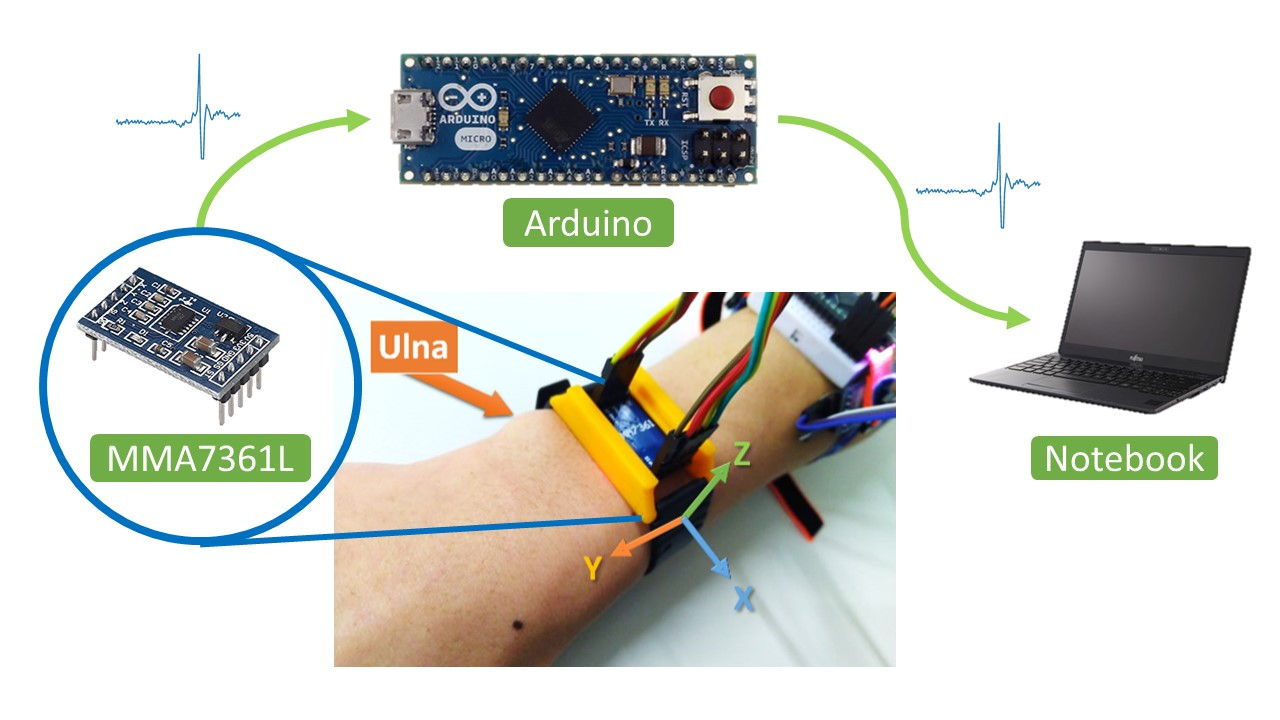 Hand Gesture Recognition by a MMG-based Wearable Device