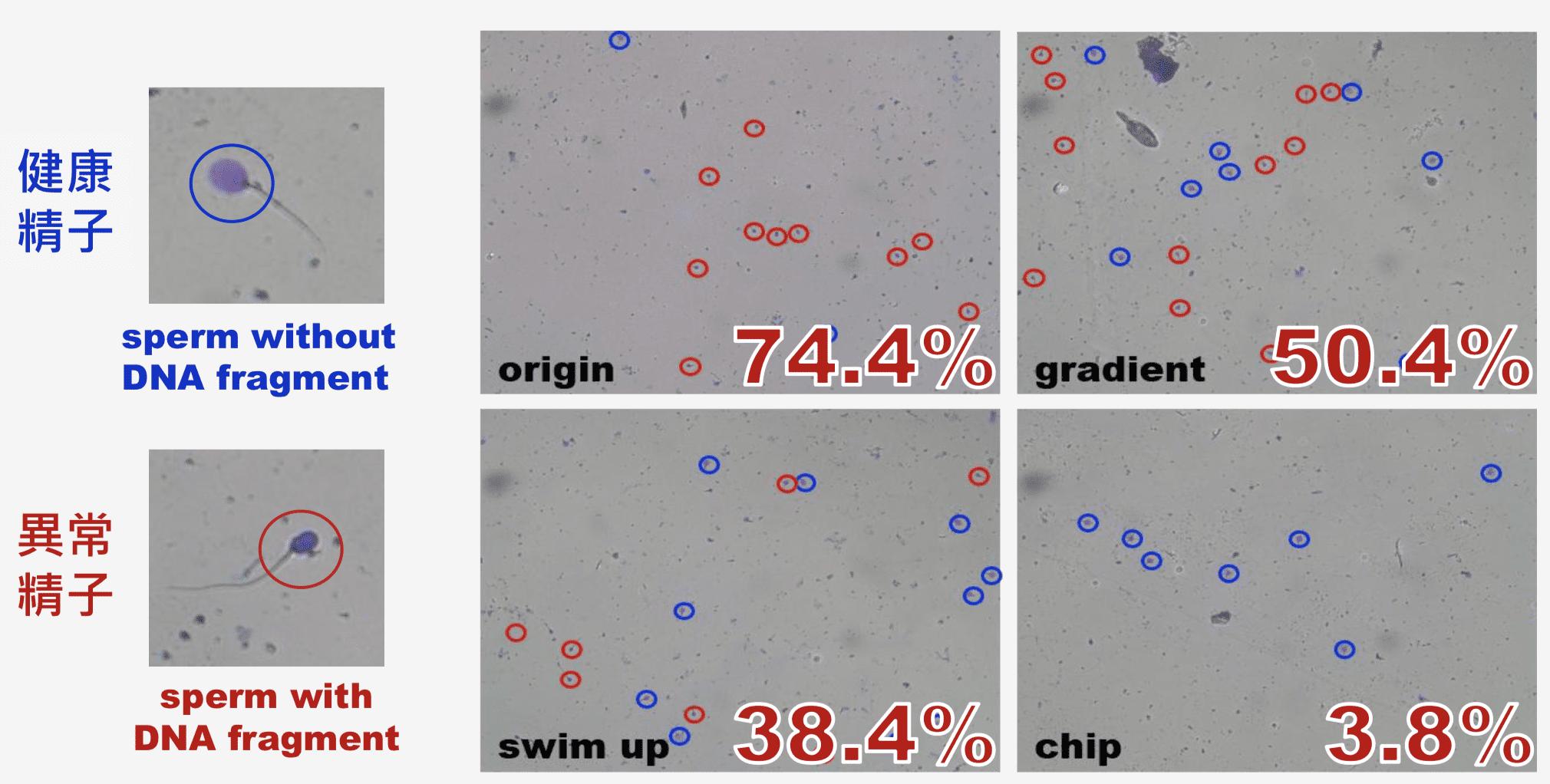 Ultra-efficient Micro Sperm Sorter