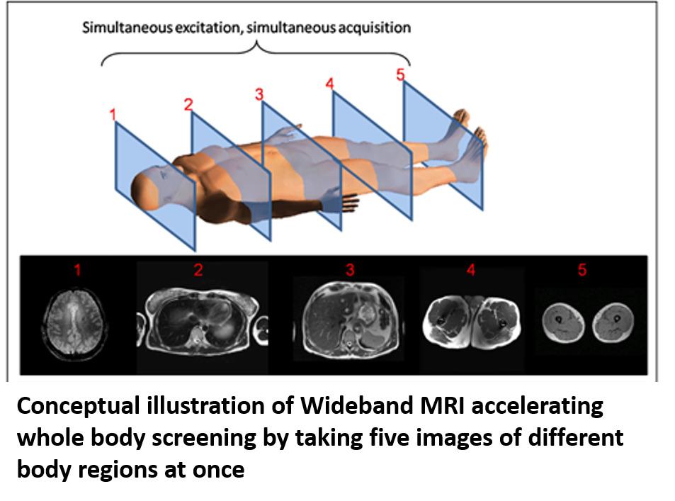 Wideband MRI Technique
