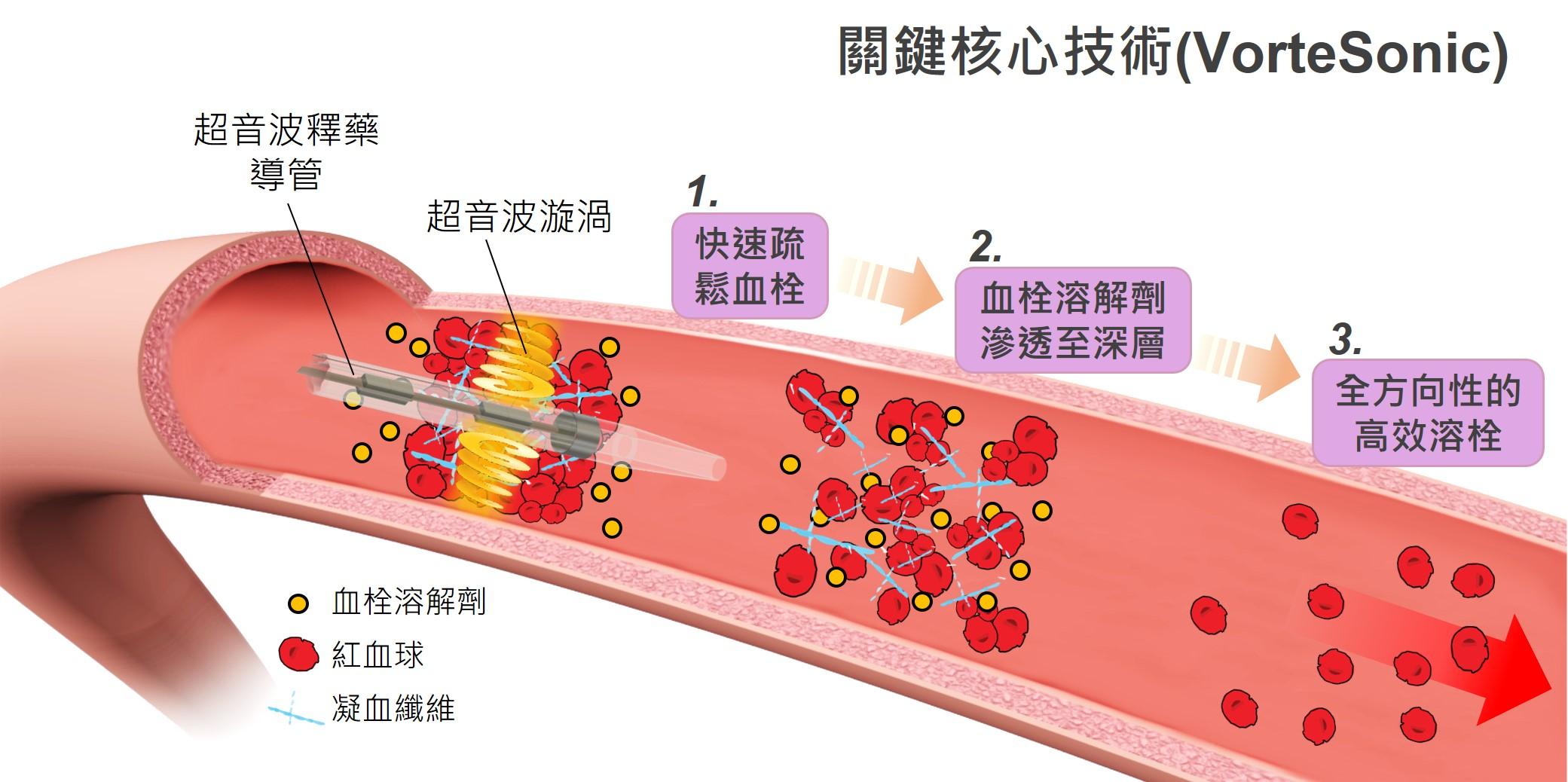 應用於血栓溶解治療之創新超音波漩渦技術