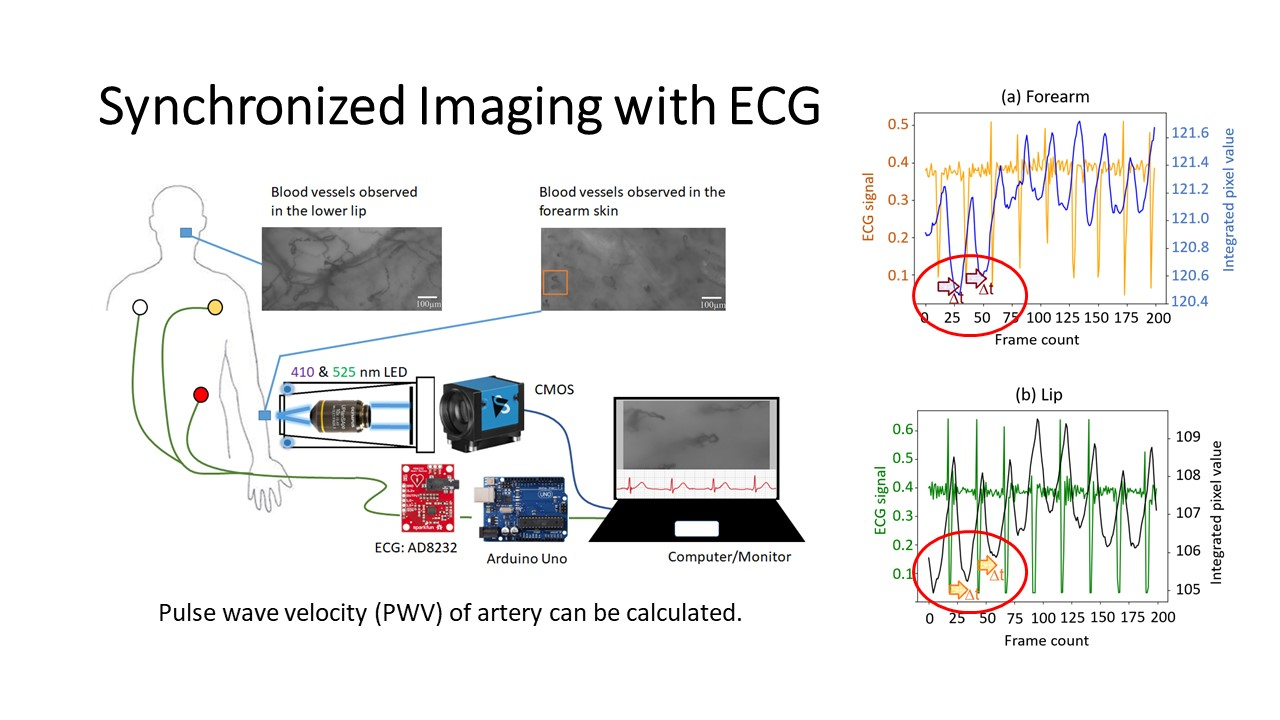 同步之心電圖與窄頻照明微循環影像系統